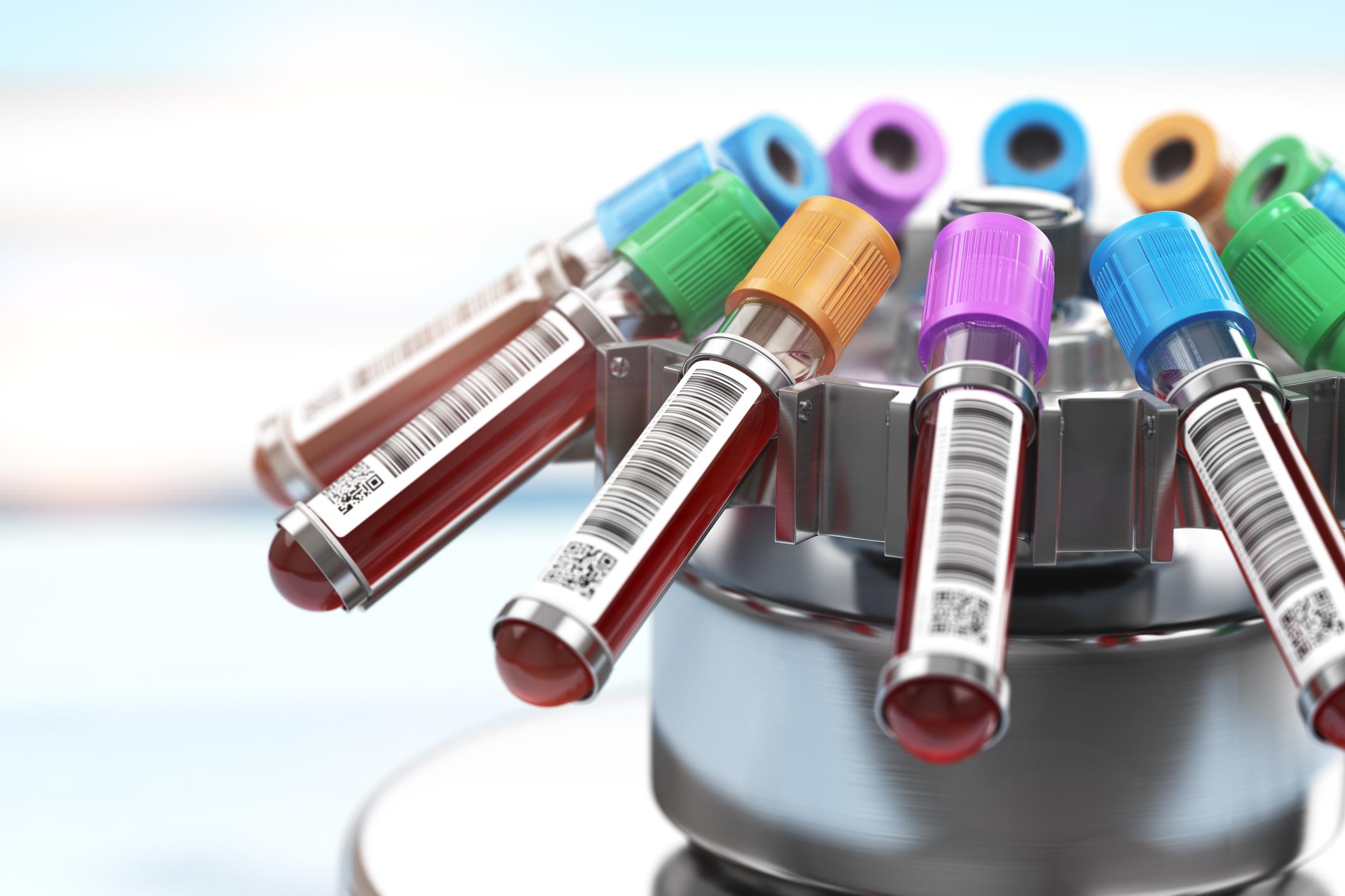 test diagnóstico covid 19